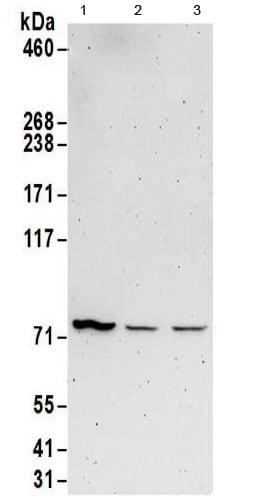 Western blot - Anti-METTL13 antibody (ab186017)