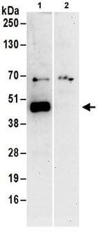 Immunoprecipitation - Anti-Protor-1 antibody (ab186018)