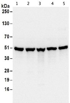 Western blot - Anti-SEPT7 antibody (ab186021)