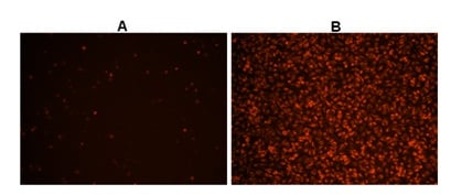 Hela cells stained with the Cellular Reactive Oxygen Species Detection Assay Kit (Deep Red Fluorescence) (ab186029)