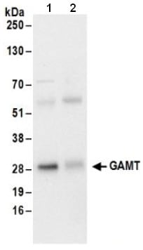 Immunoprecipitation - Anti-GAMT antibody (ab186040)