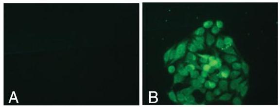 Immunocytochemistry/ Immunofluorescence - Anti-KDM5B / PLU1 / Jarid1B antibody (ab186056)