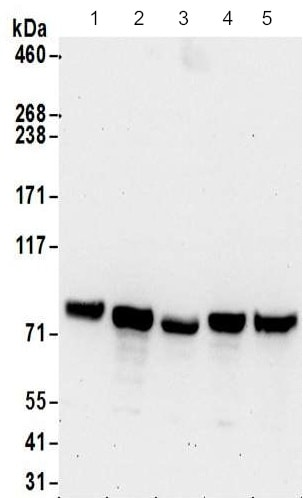 Western blot - Anti-Glycogen synthase 1/GYS1 antibody (ab186059)