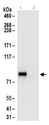 Immunoprecipitation - Anti-Glycogen synthase 1/GYS1 antibody - C-terminal (ab186068)
