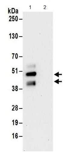 Immunoprecipitation - Anti-FNTA antibody - C-terminal (ab186136)
