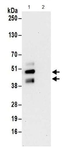 Immunoprecipitation - Anti-FNTA antibody - C-terminal (ab186136)