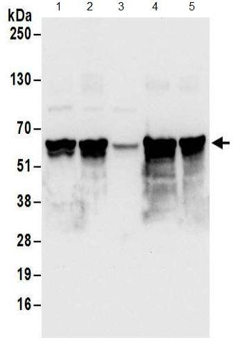 Western blot - Anti-CCDC76 antibody (ab186137)