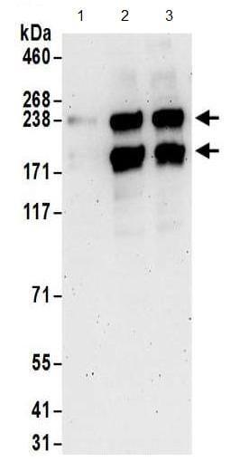 Western blot - Anti-LMTK2 antibody (ab186138)