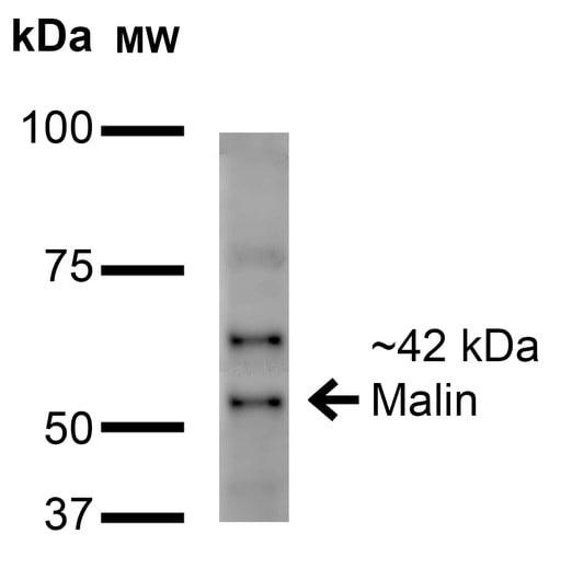 Western blot - Anti-NHLRC1/Malin antibody [N85/18] (ab186261)