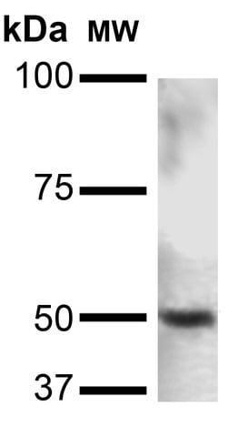 Western blot - Anti-PINK1 antibody [N4/15] (ab186303)