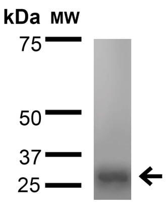 Western blot - Anti-VDAC1/Porin antibody [N152B/23] (ab186321)