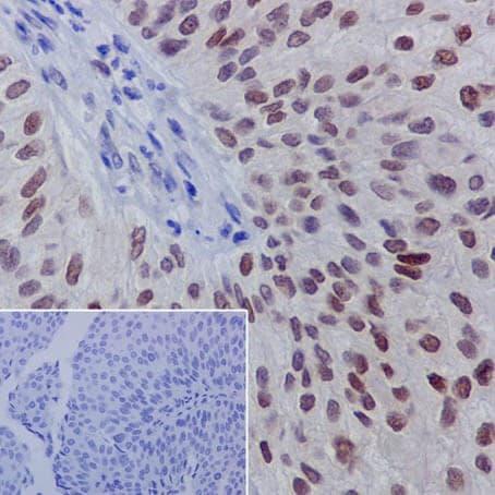 Immunohistochemistry (Formalin/PFA-fixed paraffin-embedded sections) - Anti-GATA3 (phospho S308) antibody [EPR18118] (ab186371)