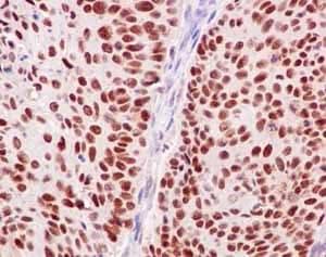 Immunohistochemistry (Formalin/PFA-fixed paraffin-embedded sections) - Anti-POLD1 antibody [EPR15118] (ab186407)