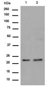 Western blot - Anti-LRRC20 antibody [EP9977(2)] (ab186416)