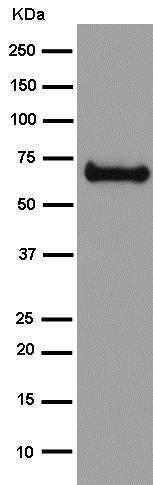 Western blot - Anti-intestinal alkaline phosphatase antibody [EPR15201(B)] (ab186422)