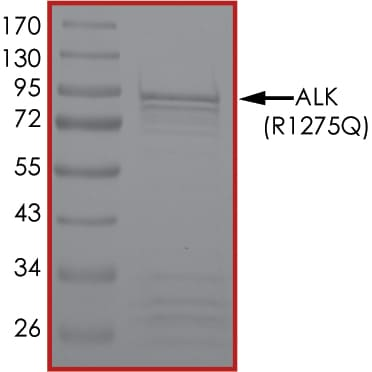 SDS-PAGE - Recombinant human ALK (mutated R1275 Q) protein (ab186455)