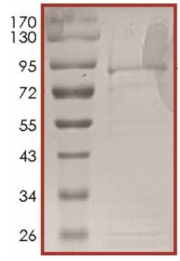 SDS-PAGE - ALK Mutant (T1151_L1152insT), Active (ab186465)