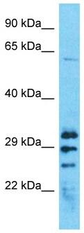 Western blot - Anti-ZBED2 antibody (ab186494)