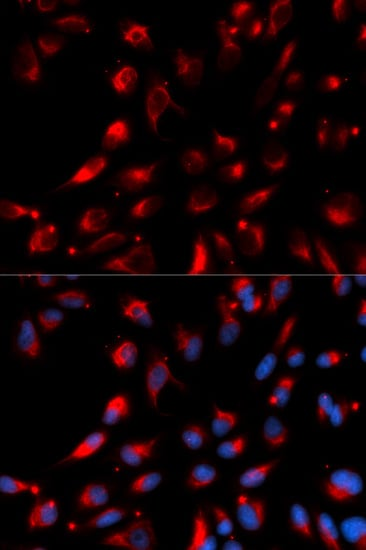 Immunocytochemistry/ Immunofluorescence - Anti-CPE antibody (ab186724)
