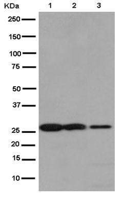 Western blot - Anti-Claudin 17 antibody [EPR15483] (ab186744)