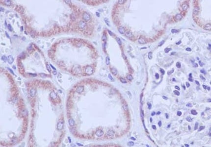 Immunohistochemistry (Formalin/PFA-fixed paraffin-embedded sections) - Anti-TFPI2 antibody [EPR14442] (ab186747)