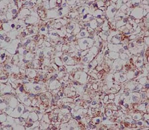 Immunohistochemistry (Formalin/PFA-fixed paraffin-embedded sections) - Anti-DCI antibody [EPR15375(B)] (ab186752)