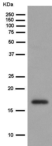 Western blot - Anti-DSTN antibody [EPR15827(B)] (ab186754)