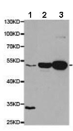 Western blot - Anti-proCathepsin D antibody (ab186826)