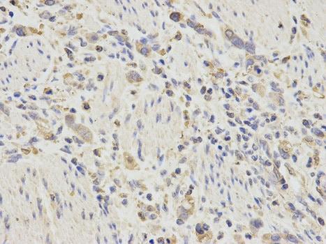 Immunohistochemistry (Formalin/PFA-fixed paraffin-embedded sections) - Anti-proCathepsin D antibody (ab186826)