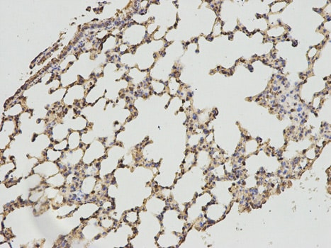 Immunohistochemistry (Formalin/PFA-fixed paraffin-embedded sections) - Anti-Lipoamide Dehydrogenase antibody (ab186827)