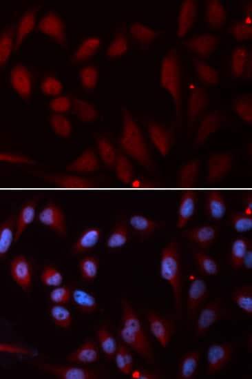 Immunocytochemistry/ Immunofluorescence - Anti-Niemann Pick C2 antibody (ab186829)