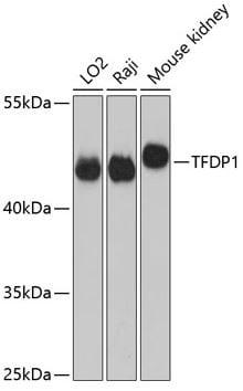 Western blot - Anti-DP1 antibody (ab186831)
