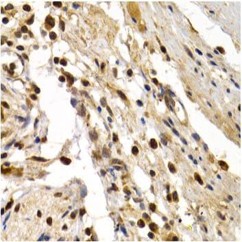 Immunohistochemistry (Formalin/PFA-fixed paraffin-embedded sections) - Anti-DP1 antibody (ab186831)