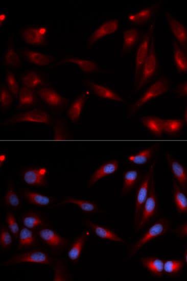 Immunocytochemistry/ Immunofluorescence - Anti-ADAM9 antibody (ab186833)