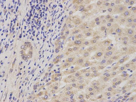 Immunohistochemistry (Formalin/PFA-fixed paraffin-embedded sections) - Anti-ADAM9 antibody (ab186833)