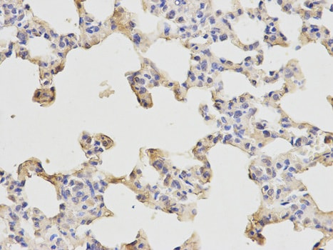 Immunohistochemistry (Formalin/PFA-fixed paraffin-embedded sections) - Anti-ETS1 antibody (ab186844)