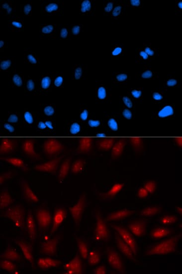 Immunocytochemistry/ Immunofluorescence - Anti-EBP1 antibody (ab186846)