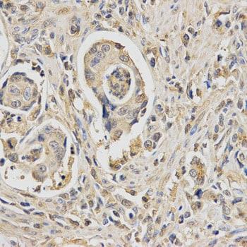 Immunocytochemistry/ Immunofluorescence - Anti-HUS1 antibody (ab186850)