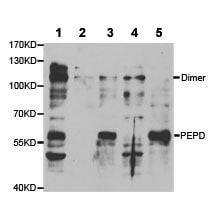 Western blot - Anti-PEPD antibody (ab186851)