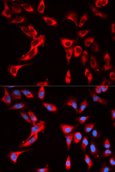 Immunocytochemistry/ Immunofluorescence - Anti-eIF4B antibody (ab186856)