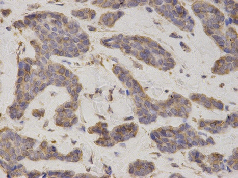 Immunohistochemistry (Formalin/PFA-fixed paraffin-embedded sections) - Anti-eIF4B antibody (ab186856)