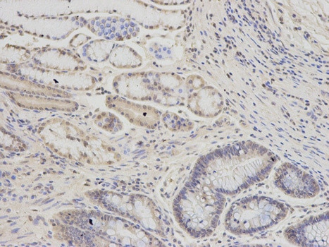 Immunohistochemistry (Formalin/PFA-fixed paraffin-embedded sections) - Anti-PSMC6 antibody (ab186858)