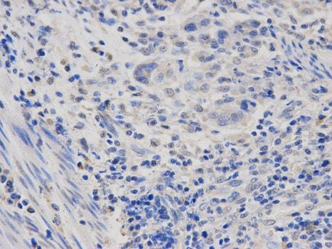 Immunohistochemistry (Formalin/PFA-fixed paraffin-embedded sections) - Anti-RNA polymerase II RPB4 antibody (ab186868)