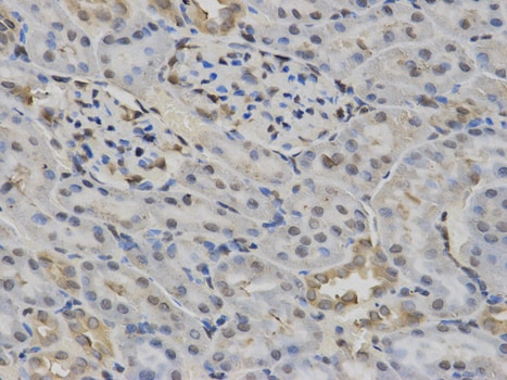 Immunohistochemistry (Formalin/PFA-fixed paraffin-embedded sections) - Anti-Constitutive androstane receptor antibody (ab186869)