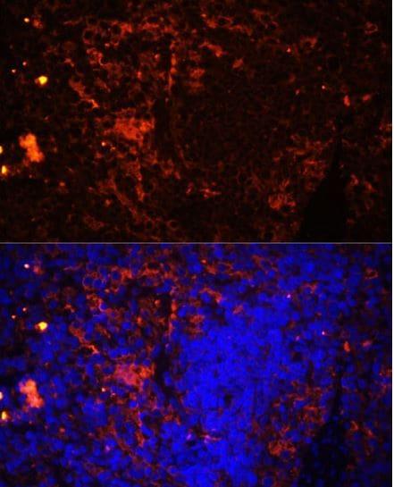 Immunocytochemistry/ Immunofluorescence - Anti-CD11a antibody (ab186873)