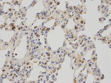 Immunohistochemistry (Formalin/PFA-fixed paraffin-embedded sections) - Anti-NR0B2 antibody (ab186874)