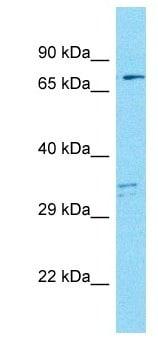 Western blot - Anti-MAP9 antibody (ab186887)