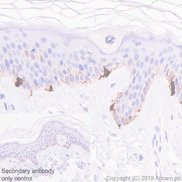 Immunohistochemistry (Formalin/PFA-fixed paraffin-embedded sections) - Anti-TRP1 antibody [EPR13063] - BSA and Azide free (ab186929)