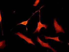 Immunocytochemistry/ Immunofluorescence - Anti-CDKN2A/p16INK4a antibody [EPR1473] - BSA and Azide free (ab186932)