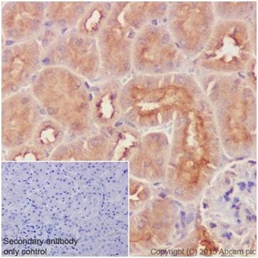Immunohistochemistry (Formalin/PFA-fixed paraffin-embedded sections) - Anti-RhoA + RhoC antibody [EPR18133] (ab187026)